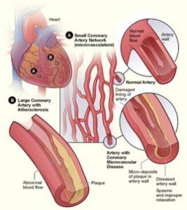 Heart non occlusive CAD